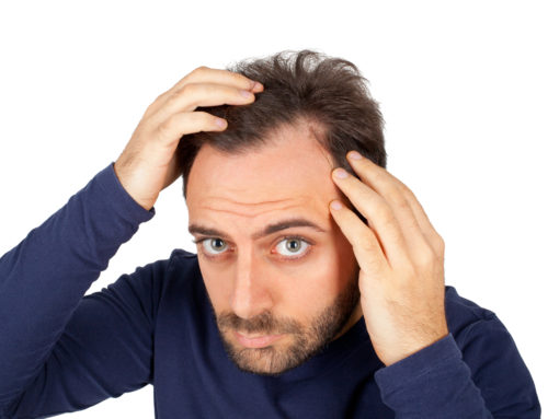 Study Explores the Seasonality of Hair Loss