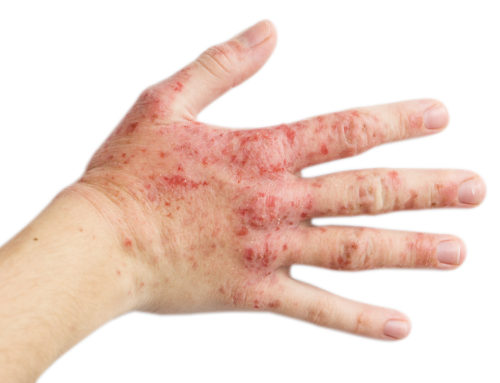 Atopic Eczema Explained: One Size Doesn't Fit all